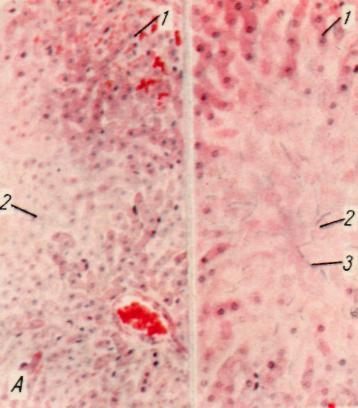 Болезнь гепатит с лечение